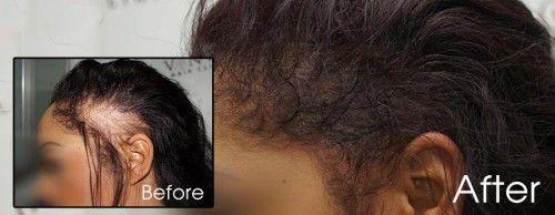 Hair Clinic Vinci