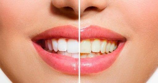 truco blaquear dientes 720