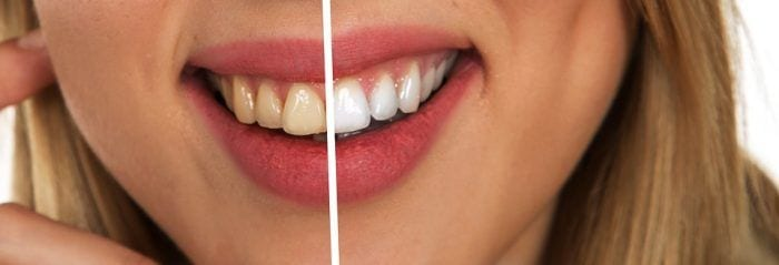 tooth-2414909_960_720