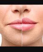 aumento de labios natural 1